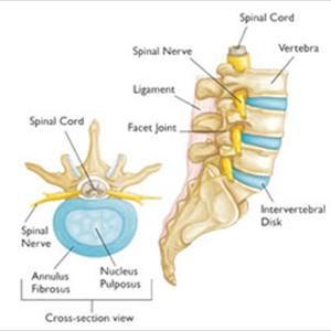 Sciatica: Cause And Diagnosis