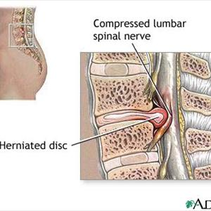 Sciatic Nerve Neuropathy Information