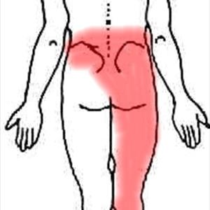 Sciatic Pain Treatment