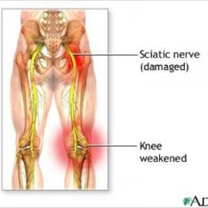Sciatic Exercises